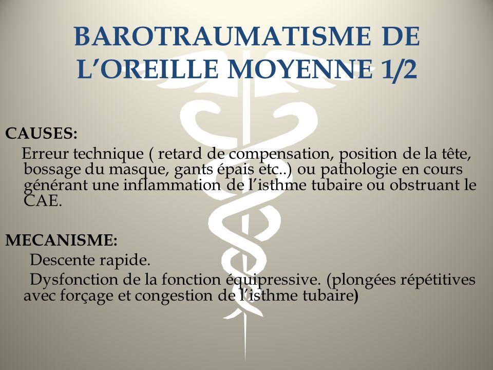 BAROTRAUMATISME DE LOREILLE MOYENNE 1/2 CAUSES: Erreur technique ( retard de compensation, position de la tête, bossage du masque, gants épais etc..)