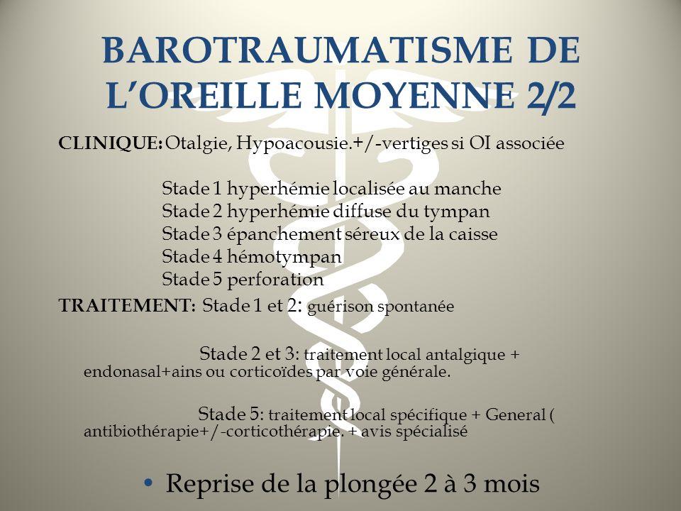 BAROTRAUMATISME DE LOREILLE MOYENNE 2/2 CLINIQUE: Otalgie, Hypoacousie.+/-vertiges si OI associée Stade 1 hyperhémie localisée au manche Stade 2 hyper