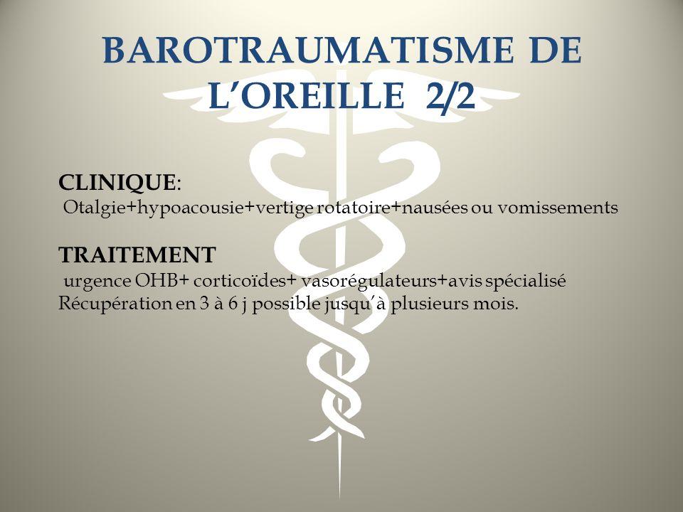 BAROTRAUMATISME DE LOREILLE 2/2 CLINIQUE : Otalgie+hypoacousie+vertige rotatoire+nausées ou vomissements TRAITEMENT urgence OHB+ corticoïdes+ vasorégu