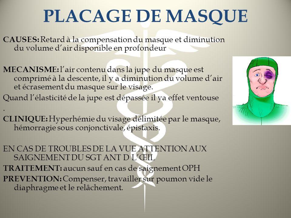 PLACAGE DE MASQUE CAUSES: Retard à la compensation du masque et diminution du volume dair disponible en profondeur MECANISME: lair contenu dans la jup