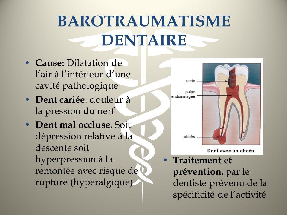 BAROTRAUMATISME DENTAIRE Cause: Dilatation de lair à lintérieur dune cavité pathologique Dent cariée. douleur à la pression du nerf Dent mal occluse.