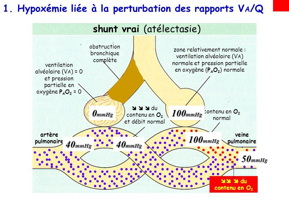 shunt vrai intra-pulmonaire: quand dans certains territoires la ventilation alvéolaire (V A ) est nulle –lhypoxémie par shunt vrai se rencontre notamment en cas datélectasie dans les comblements alvéolaires (pneumonie, SDRA) 1.