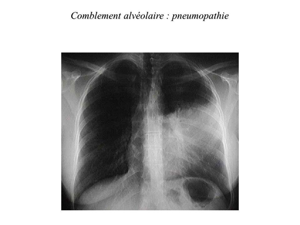 cas particulier de lemphysème il existe en plus du trouble ventilatoire obstructif une raréfaction du lit vasculaire – de la diffusion* alvéolaire de l 0 2 en raison de la de la surface déchanges alvéolo-capillaires –le CO 2 (beaucoup plus diffusible que l 0 2 ) est normal ou (hyperventilation du fait de l hypoxémie) –la Pa0 2 est longtemps normale tout au moins au repos, la PaC0 2 est et ne s élève quau stade ultime de la maladie 1.