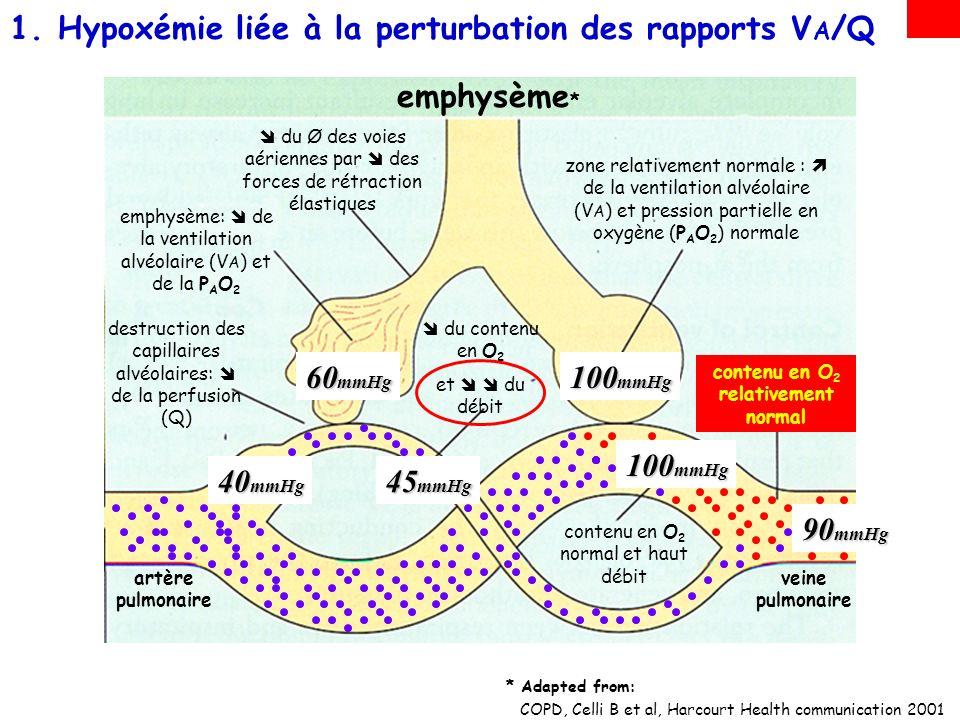 1.Anomalies des rapports ventilation/perfusion (V A /Q) –Cest le principal mécanisme en cause, notamment dans les hypoxémies des troubles ventilatoires obstructifs 2.Incapacité du soufflet thoracique à assurer une ventilation suffisante (hypoventilation alvéolaire) –Ce mécanisme est en cause, notamment dans les hypoxémies des troubles ventilatoires restrictifs : PHYSIOPATHOLOGIE: TROIS principaux mécanismes conduisent à lhypoxémie