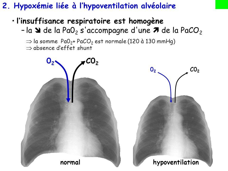 1.Anomalies des rapports ventilation/perfusion (V A /Q) –Cest le principal mécanisme en cause, notamment dans les hypoxémies des troubles ventilatoires obstructifs 2.Incapacité du soufflet thoracique à assurer une ventilation suffisante (hypoventilation alvéolaire) –Ce mécanisme est en cause, notamment dans les hypoxémies des troubles ventilatoires restrictifs 3.Incapacité de la surface alvéolo capillaire d assurer les échanges –Soit altération au niveau de la membrane alvéolo capillaire (fibroses) –Soit altération au niveau du lit vasculaire (HTAP primitive ou post- embolique) : PHYSIOPATHOLOGIE: TROIS principaux mécanismes conduisent à lhypoxémie