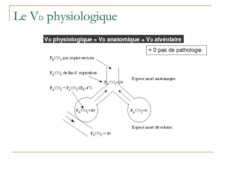Le V D physiologique = 0 pas de pathologie