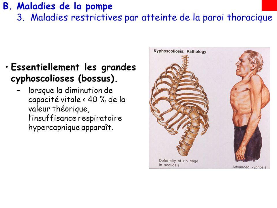 B.Maladies de la pompe 3.Maladies restrictives par atteinte de la paroi thoracique Essentiellement les grandes cyphoscolioses (bossus). –lorsque la di