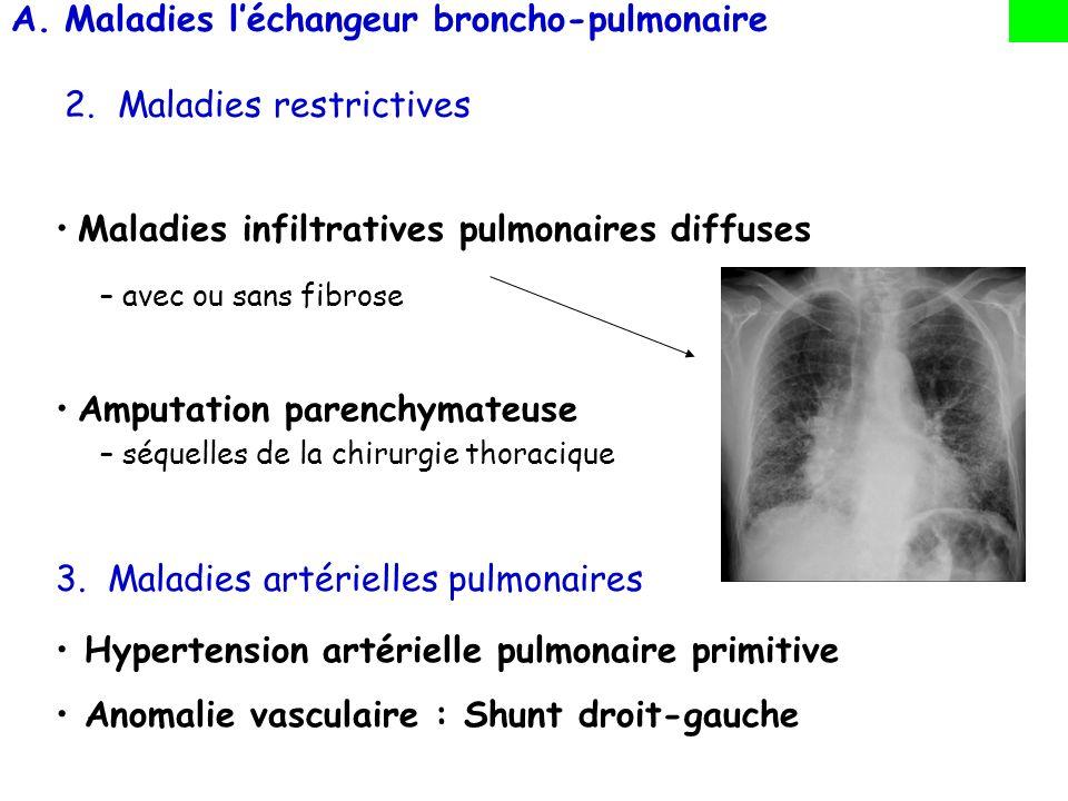 A.Maladies léchangeur broncho-pulmonaire 2.Maladies restrictives Maladies infiltratives pulmonaires diffuses –avec ou sans fibrose Amputation parenchy
