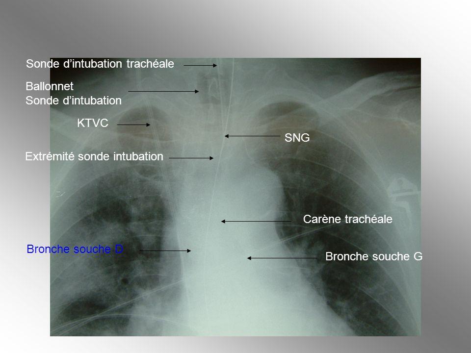 Carène trachéale Bronche souche G Bronche souche D Extrémité sonde intubation KTVC Ballonnet Sonde dintubation Sonde dintubation trachéale SNG