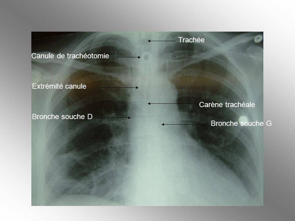 Carène trachéale Bronche souche G Bronche souche D Extrémité canule Canule de trachéotomie Trachée