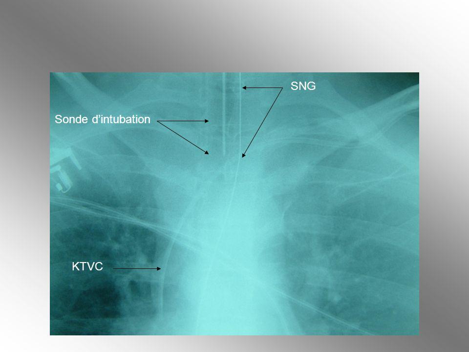 KTVC SNG Sonde dintubation