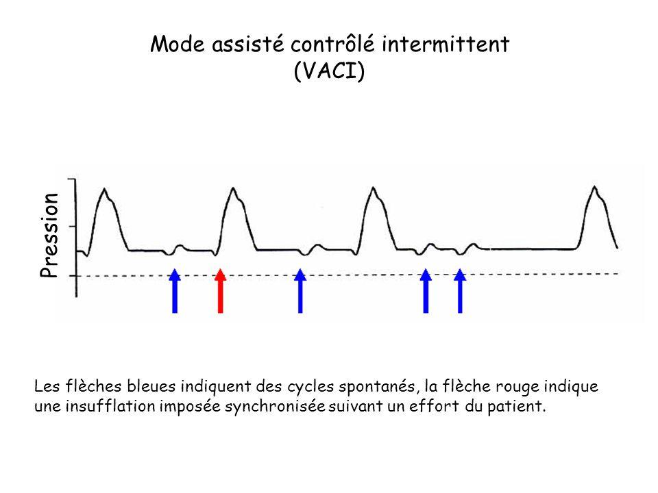 Les flèches bleues indiquent des cycles spontanés, la flèche rouge indique une insufflation imposée synchronisée suivant un effort du patient. Mode as