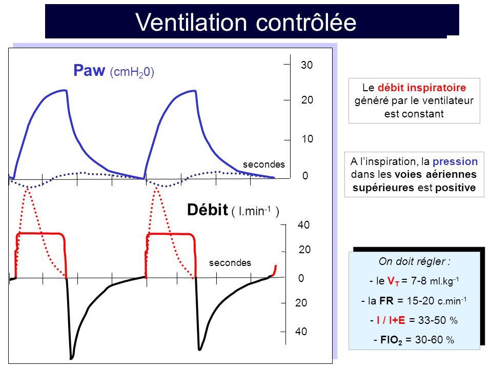 Ventilation contrôlée avec PEP Paw (cmH 2 0) secondes 20 40 30 20 PEP = 10 cmH 2 O 0 secondes 40 20 0 Débit ( l.min -1 ) 10 La pression expiratoire positive (PEP) permet, en fin dexpiration, de maintenir le poumon ouvert lorsquatélectasié ou oedèmateux La PEP se règle entre 5 et 20 cmH 2 O