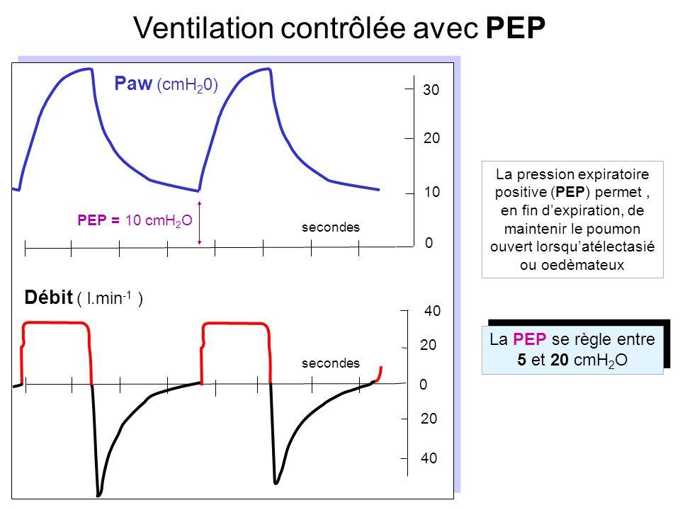 Les flèches bleues indiquent des cycles spontanés, la flèche rouge indique une insufflation imposée synchronisée suivant un effort du patient.