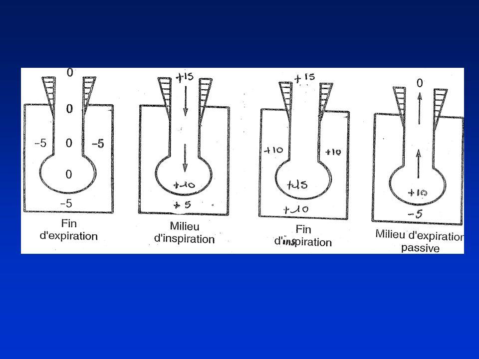 Indications de VA Respiratoires : Défaillances respiratoires aiguës *Par atteintes parenchymateuses : SDRA, PNP infectieuses, contusion pulmonaire *Dorigine centrale : IRC décompensées, morphiniques *Par atteinte de la mécanique ventilatoire : pathologies neuro- musculaires *OAP Hémodynamiques : états de choc Neurologiques : coma