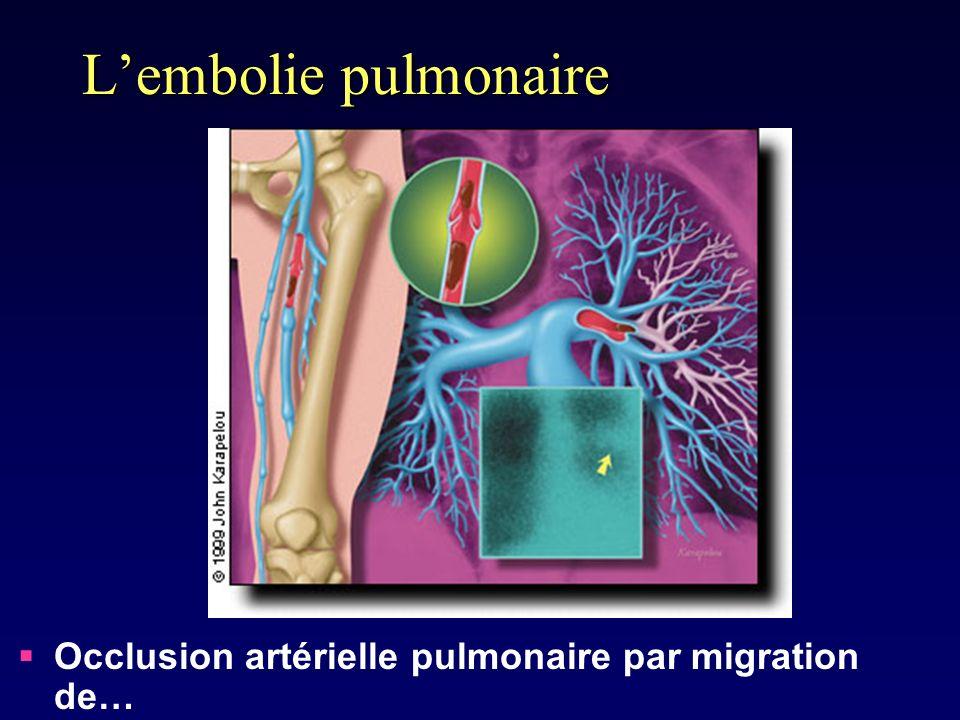 Lembolie pulmonaire Occlusion artérielle pulmonaire par migration de…