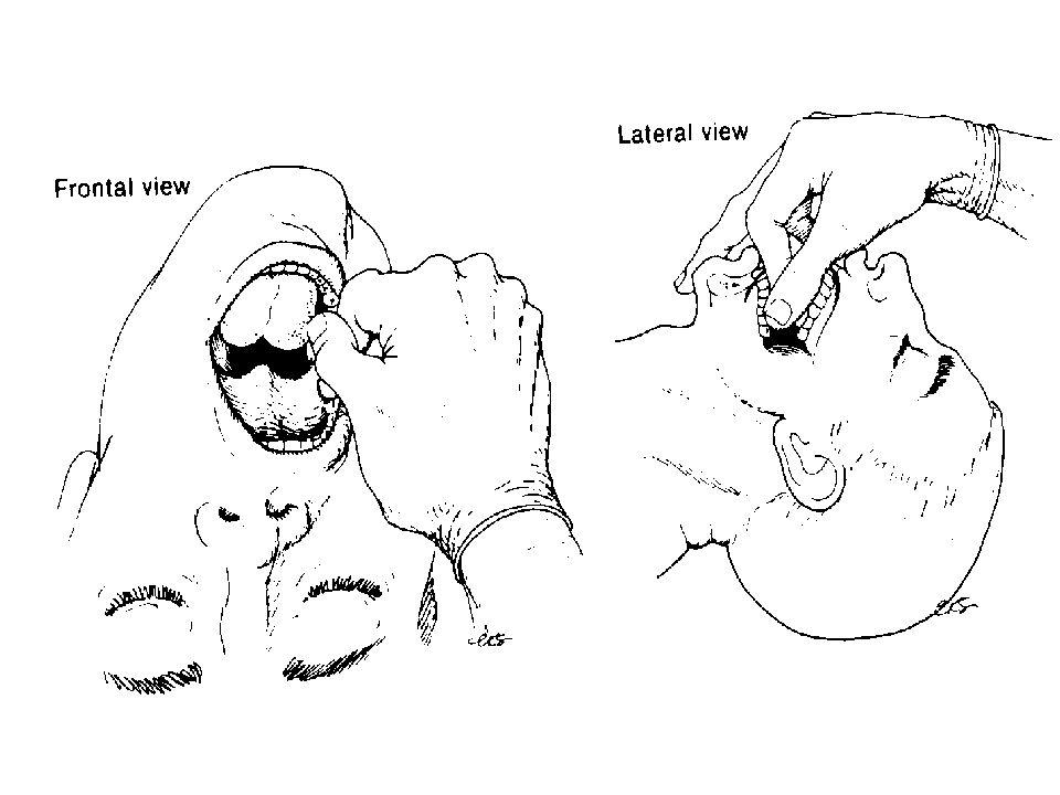 Positionnement de la sonde d intubation Repère sur la sonde homme 23 cm femme 21 cm Distance dents - cordes vocales 12 - 15 cm Distance cordes vocales - carène 10 - 15 cm