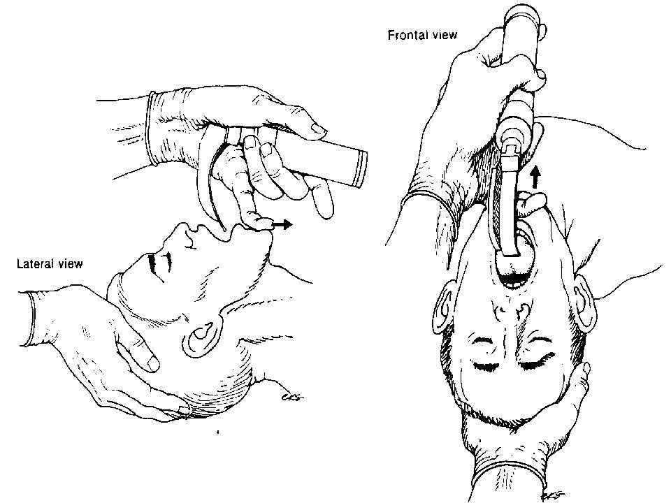 Intubation nasale à l aveugle Technique non recommandée par conférence d experts