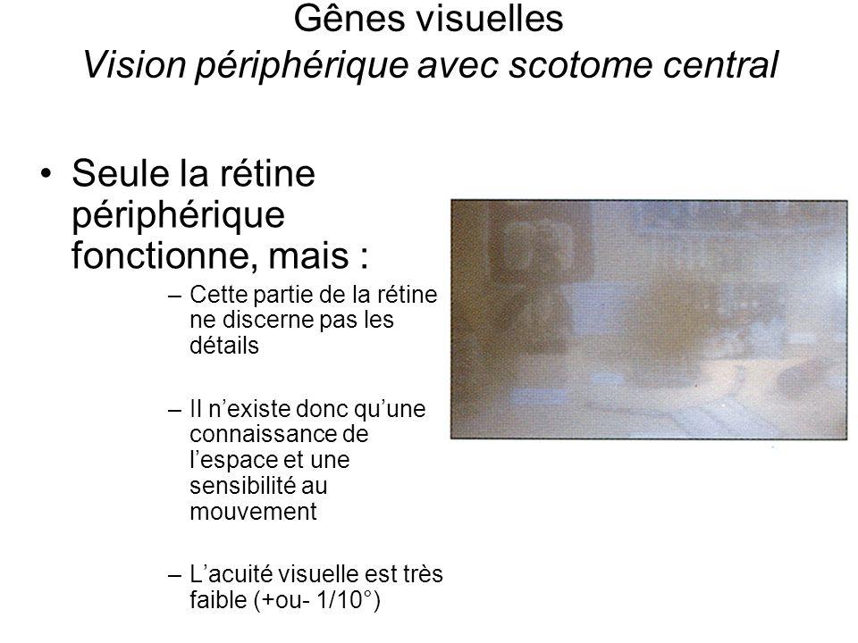 Gênes visuelles Vision périphérique avec scotome central Seule la rétine périphérique fonctionne, mais : –Cette partie de la rétine ne discerne pas le