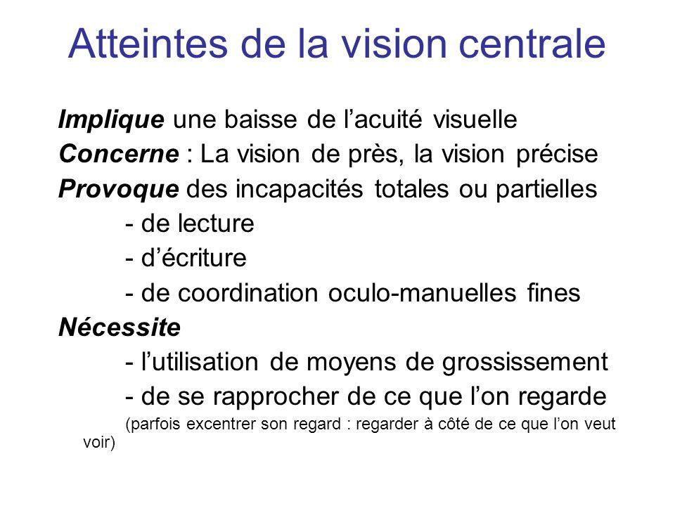 Atteintes de la vision centrale Implique une baisse de lacuité visuelle Concerne : La vision de près, la vision précise Provoque des incapacités total