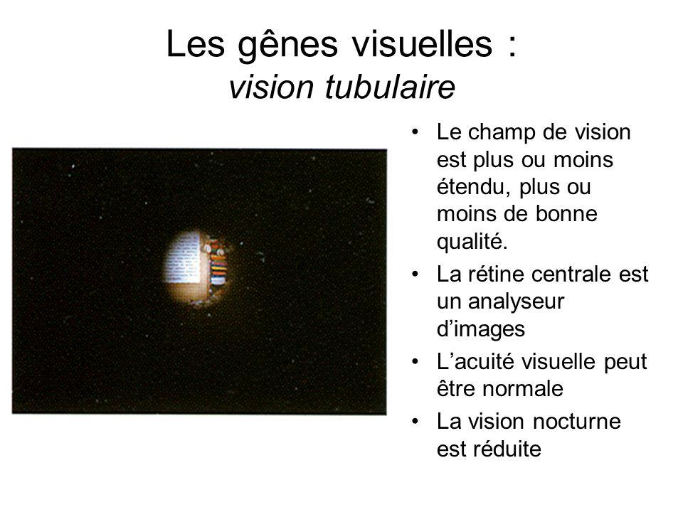 Les gênes visuelles : vision tubulaire Le champ de vision est plus ou moins étendu, plus ou moins de bonne qualité. La rétine centrale est un analyseu