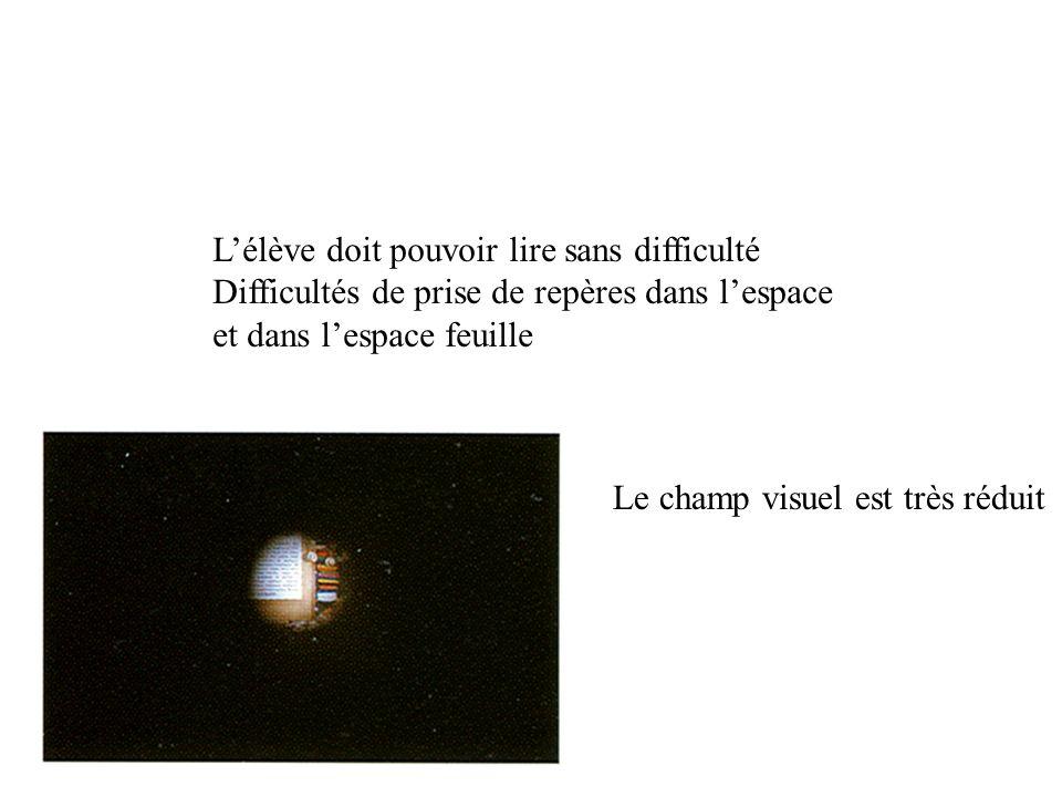 Lélève doit pouvoir lire sans difficulté Difficultés de prise de repères dans lespace et dans lespace feuille Le champ visuel est très réduit
