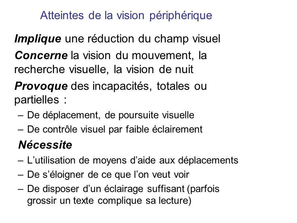 Atteintes de la vision périphérique Implique une réduction du champ visuel Concerne la vision du mouvement, la recherche visuelle, la vision de nuit P