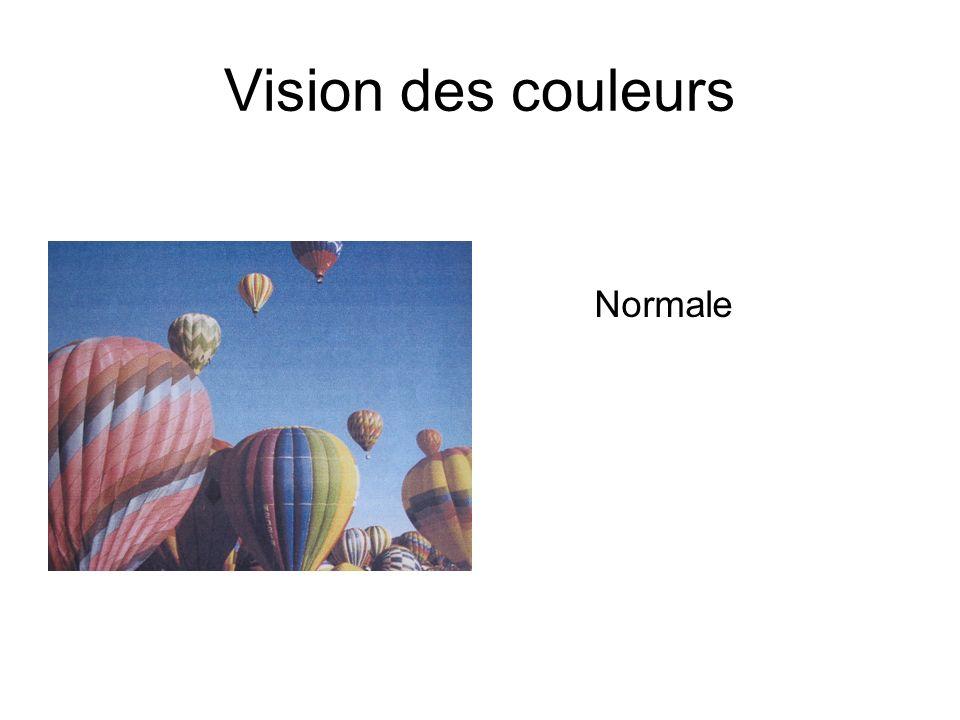 Vision des couleurs Normale