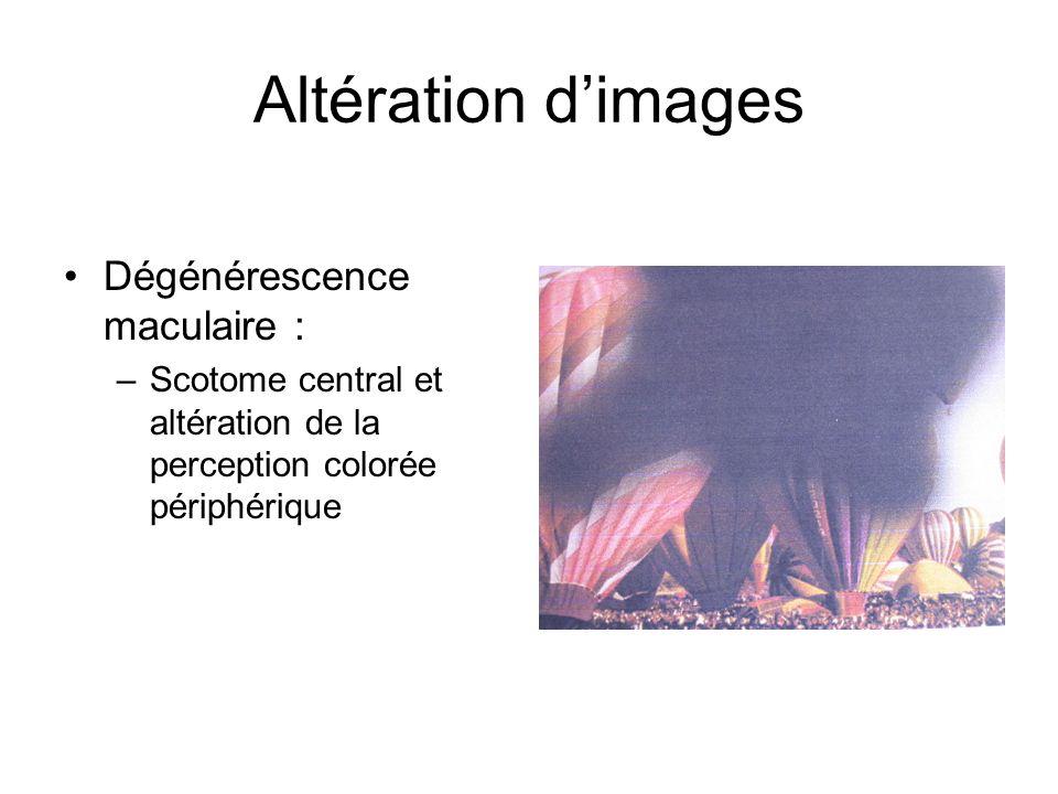 Altération dimages Dégénérescence maculaire : –Scotome central et altération de la perception colorée périphérique