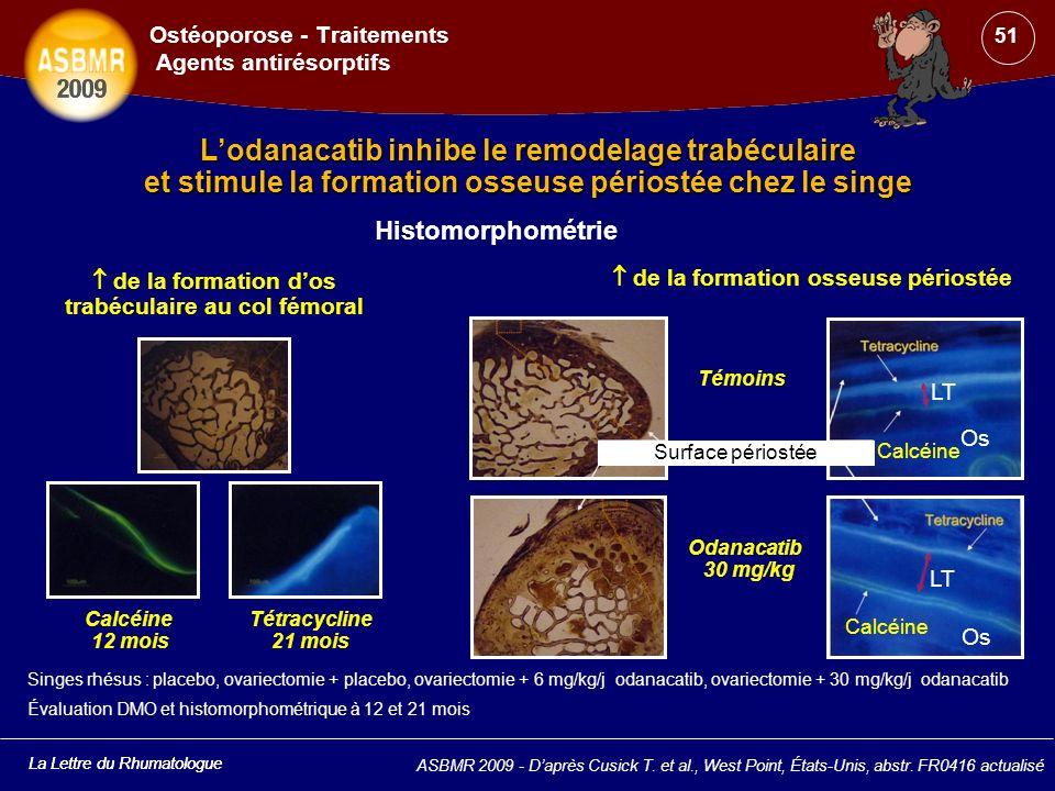 La Lettre du Rhumatologue Lodanacatib inhibe le remodelage trabéculaire et stimule la formation osseuse périostée chez le singe ASBMR 2009 - Daprès Cu