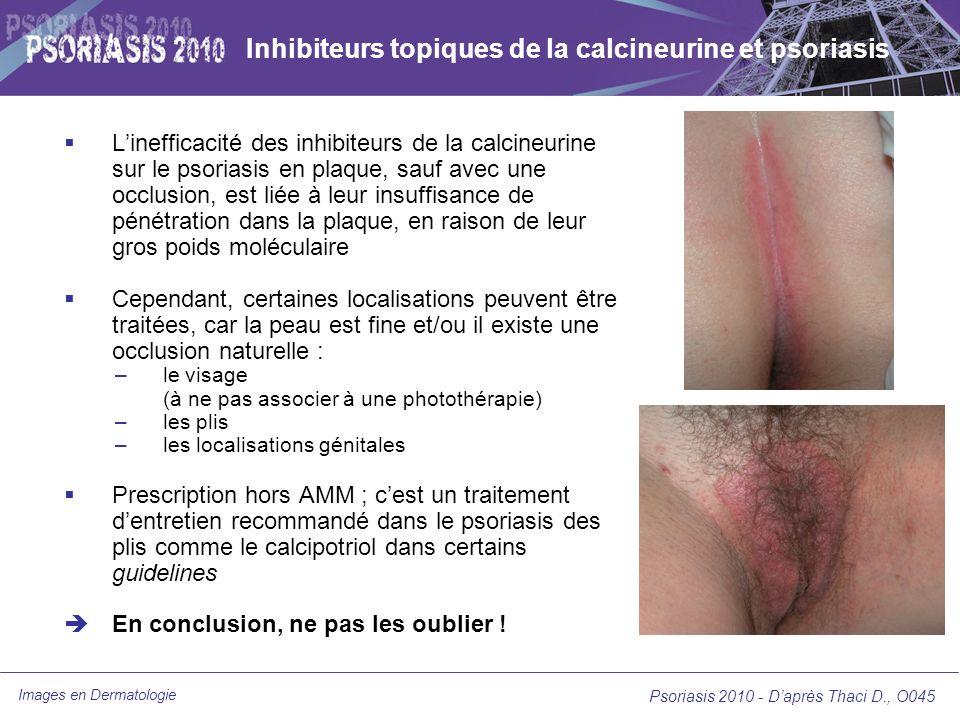 Images en Dermatologie Psoriasis 2010 - Daprès Thaci D., O045 Inhibiteurs topiques de la calcineurine et psoriasis Linefficacité des inhibiteurs de la