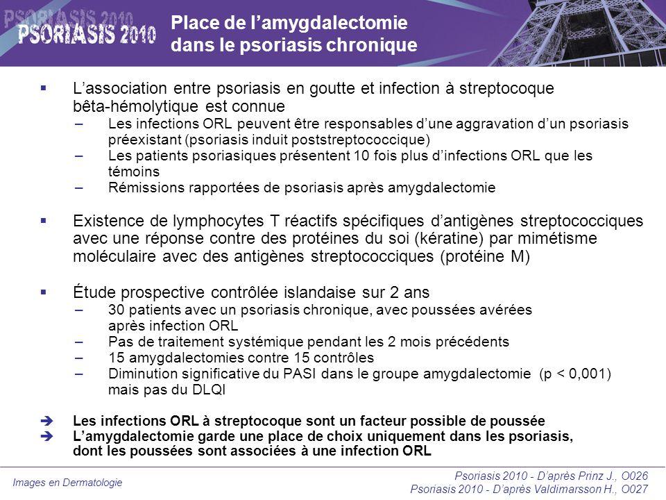 Images en Dermatologie Comparaison des thérapies dans le psoriasis modéré à sévère (pourcentage de patients ayant atteint un PASI 75) Psoriasis 2010 - Daprès Paul C., O039 80 68 67 63 60 49 34 30 0 10 20 30 40 50 60 70 80 90 Infliximab Adalimumab CsA (5 mg/kg/j) Ustekinumab (45 mg) PUVA UVB TL01 Méthotrexate CsA (2,5 mg/kg/j) Etanercept 50 mg X 2 Etanercept 25 mg X 2 Acitrétine (50 mg/j)