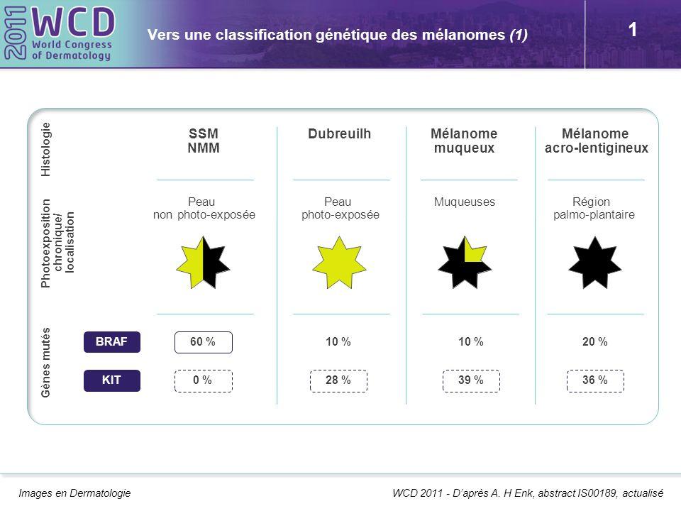 1 Vers une classification génétique des mélanomes (1) Images en Dermatologie WCD 2011 - Daprès A. H Enk, abstract IS00189, actualisé SSM NMM Dubreuilh