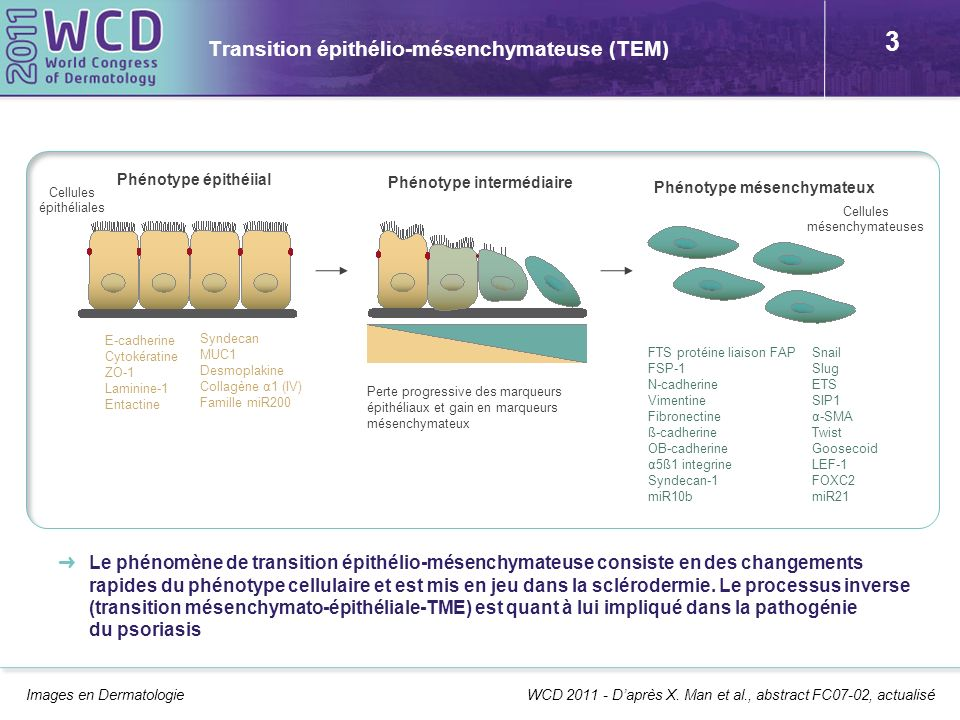 3 Transition épithélio-mésenchymateuse (TEM) Images en Dermatologie Le phénomène de transition épithélio-mésenchymateuse consiste en des changements r