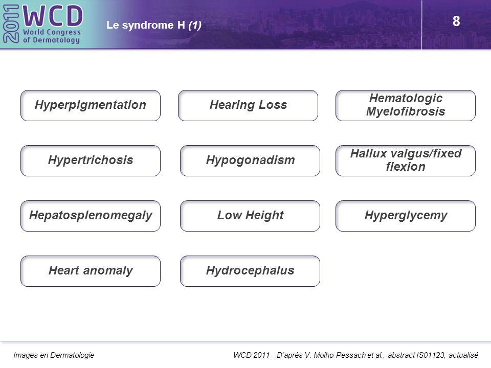 9 Le syndrome H (2) Série princeps de 10 patients issus de 6 familles dorigine arabe avec consanguinité Nouvelle génodermatose autosomale récessive Avec une symptomatologie en H et sans H (masses génitales, adenopathies, exophtalmie avec dilatation des vaisceaux scléraux, etc.) Identification dune mutation principale G437R associée à 11 autres non constantes Lien avec histiocytose familiale, POEMS syndrome… .