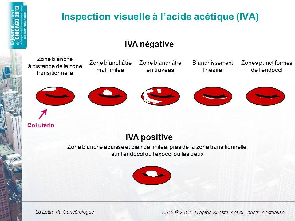 La Lettre du Cancérologue Inspection visuelle à lacide acétique (IVA) ASCO ® 2013 - D'après Shastri S et al., abstr. 2 actualisé IVA négative IVA posi