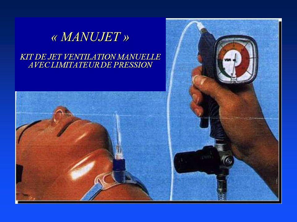 « MANUJET » KIT DE JET VENTILATION MANUELLE AVEC LIMITATEUR DE PRESSION