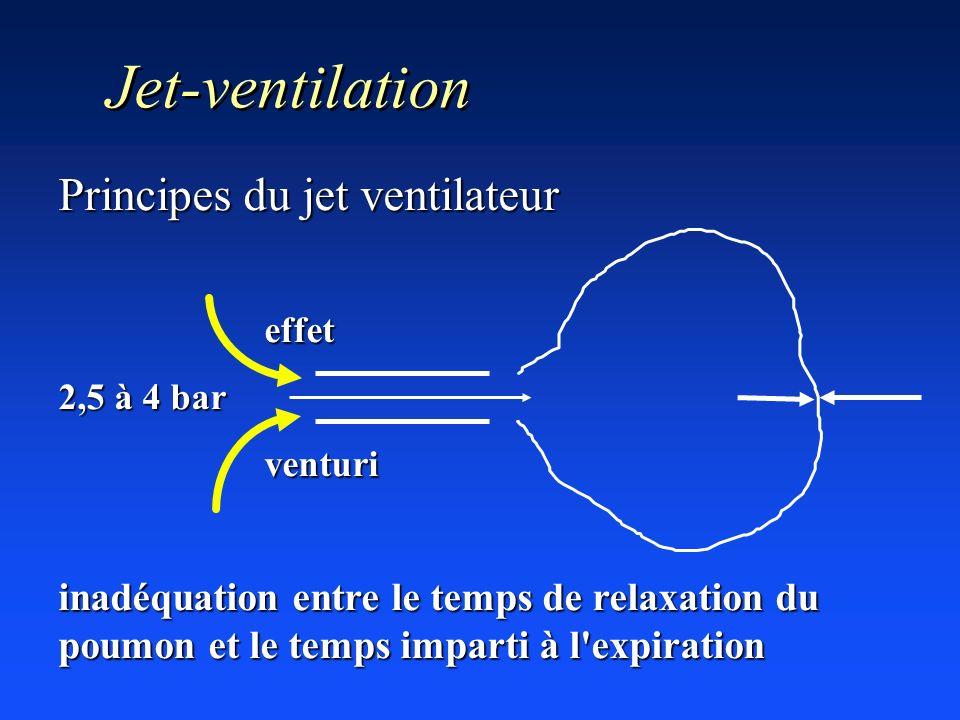 Jet-ventilation Principes du jet ventilateur effet effet 2,5 à 4 bar venturi venturi inadéquation entre le temps de relaxation du poumon et le temps i