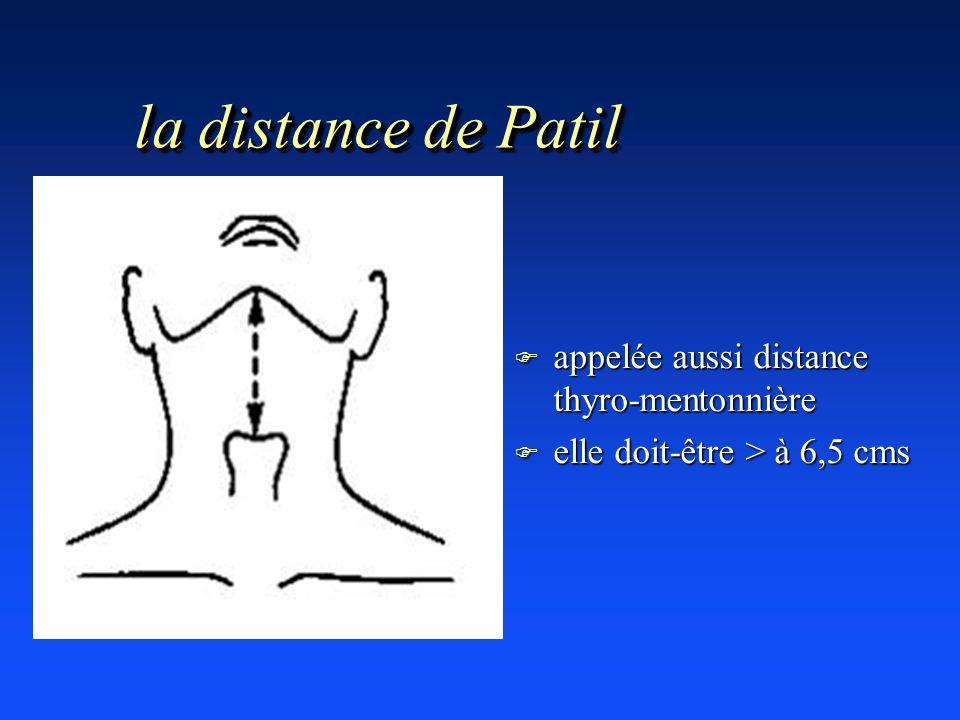 la distance de Patil F appelée aussi distance thyro-mentonnière F elle doit-être > à 6,5 cms