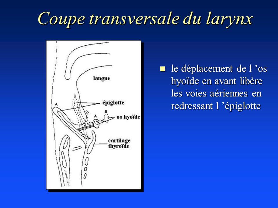 Coupe transversale du larynx n le déplacement de l os hyoïde en avant libère les voies aériennes en redressant l épiglotte