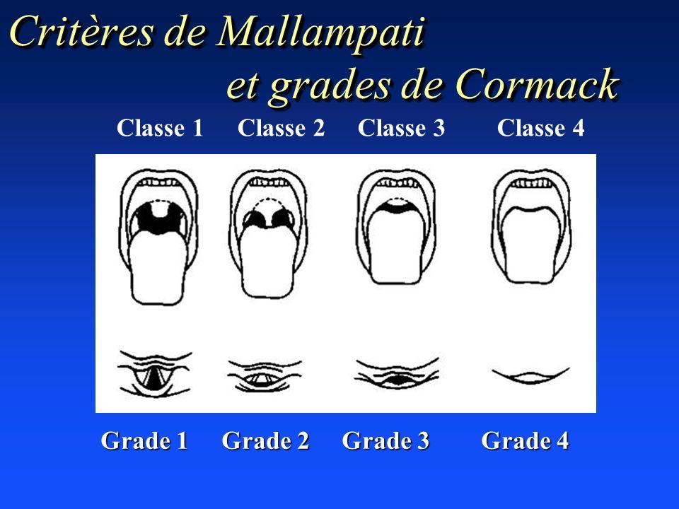 Classe 1 Classe 2 Classe 3 Classe 4 Grade 1 Grade 2 Grade 3 Grade 4 Critères de Mallampati et grades de Cormack