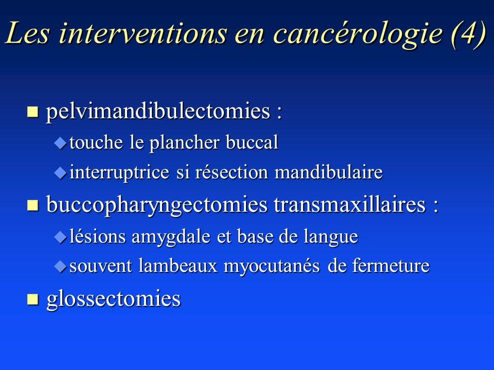 Les interventions en cancérologie (4) n pelvimandibulectomies : u touche le plancher buccal u interruptrice si résection mandibulaire n buccopharyngec
