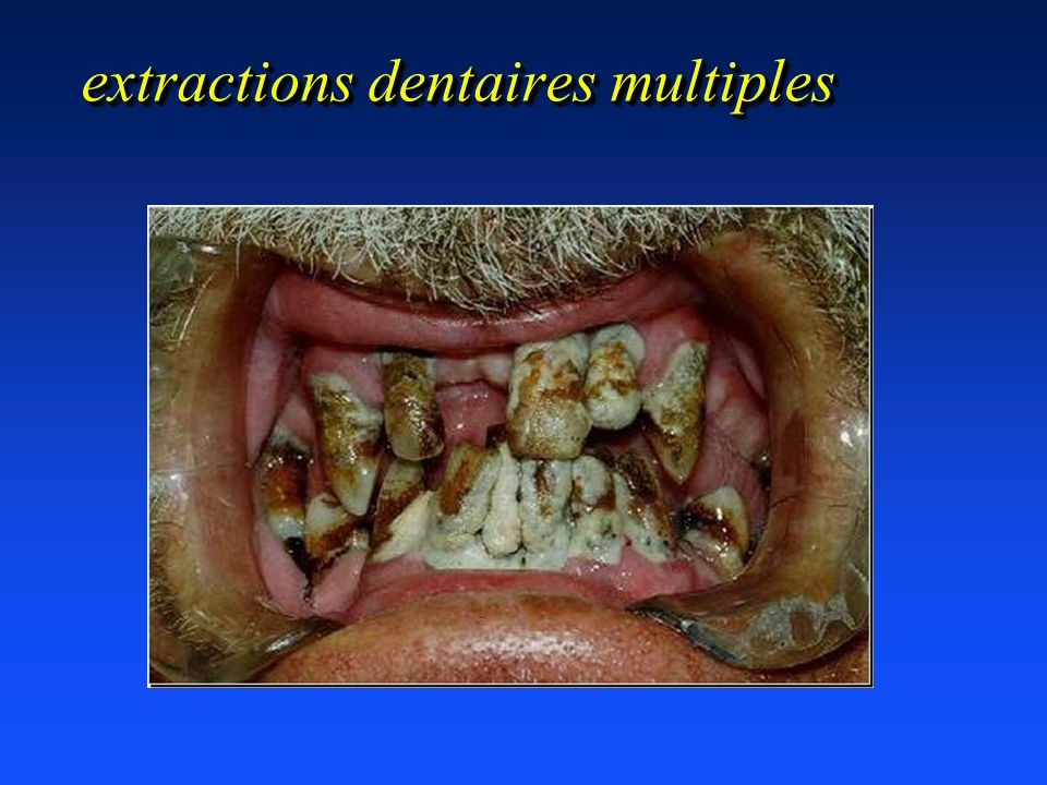extractions dentaires multiples