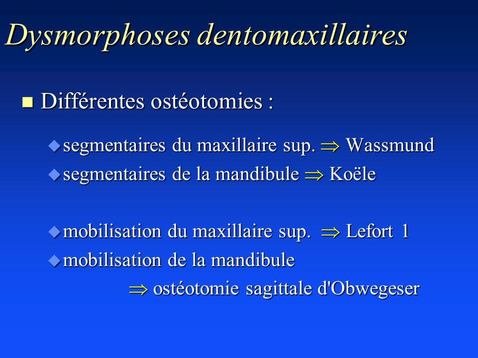 Dysmorphoses dentomaxillaires n Différentes ostéotomies : u segmentaires du maxillaire sup. Wassmund u segmentaires de la mandibule Koële u mobilisati