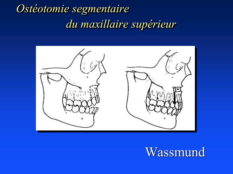 Ostéotomie segmentaire du maxillaire supérieur Wassmund