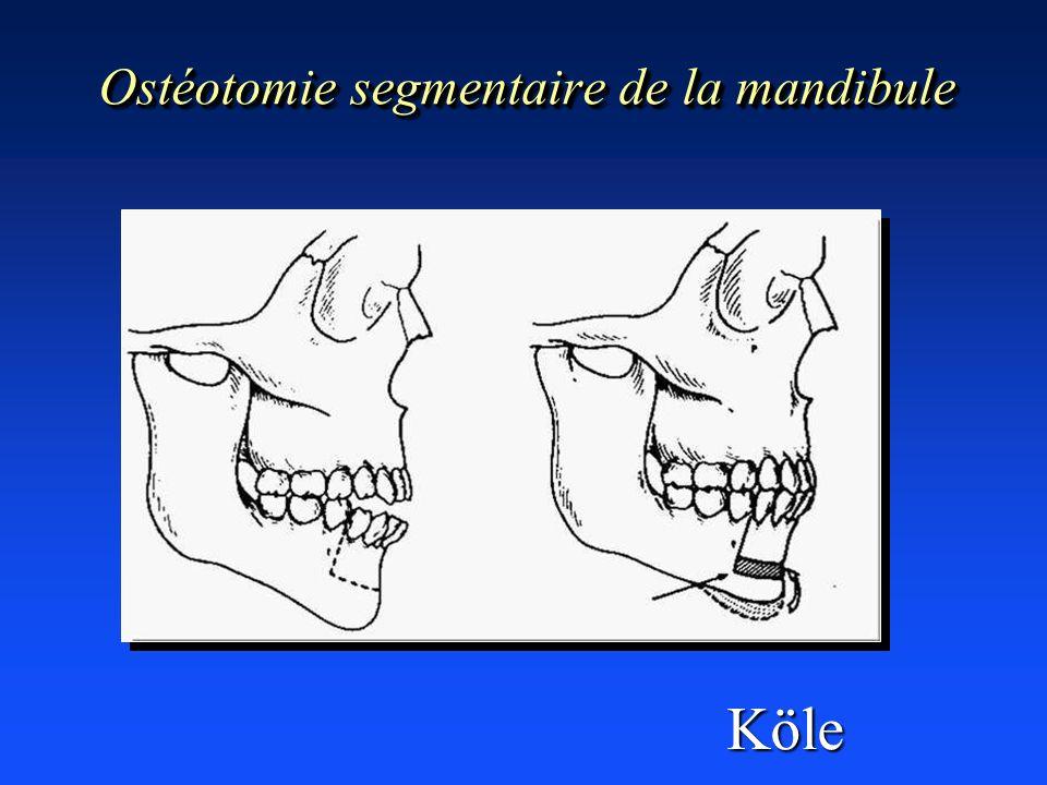 Ostéotomie segmentaire de la mandibule Köle