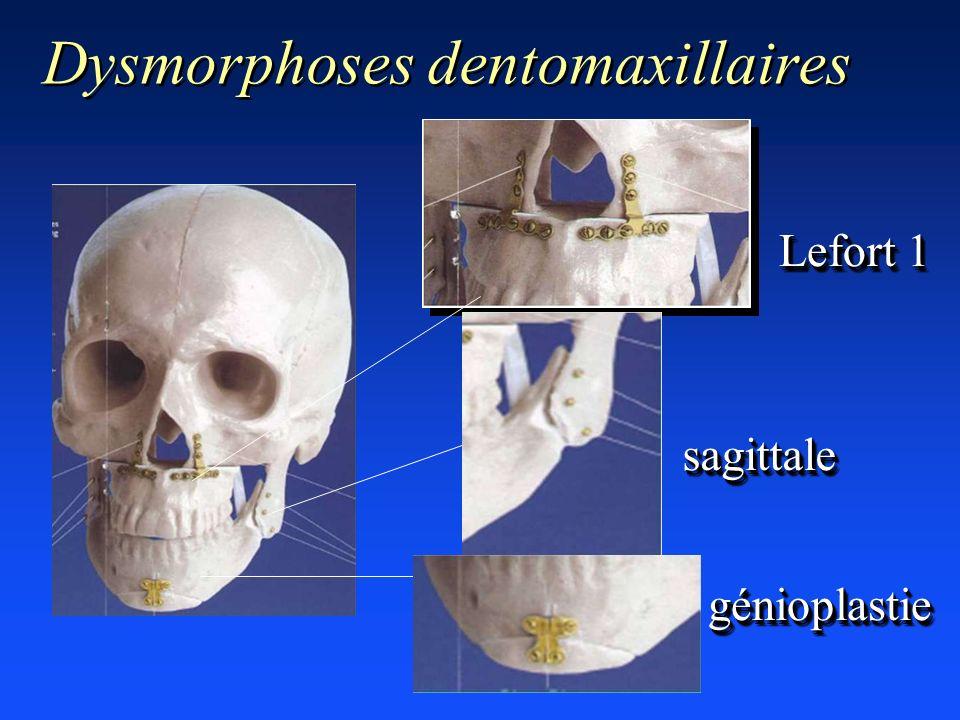 Dysmorphoses dentomaxillaires sagittalesagittale Lefort 1 génioplastiegénioplastie