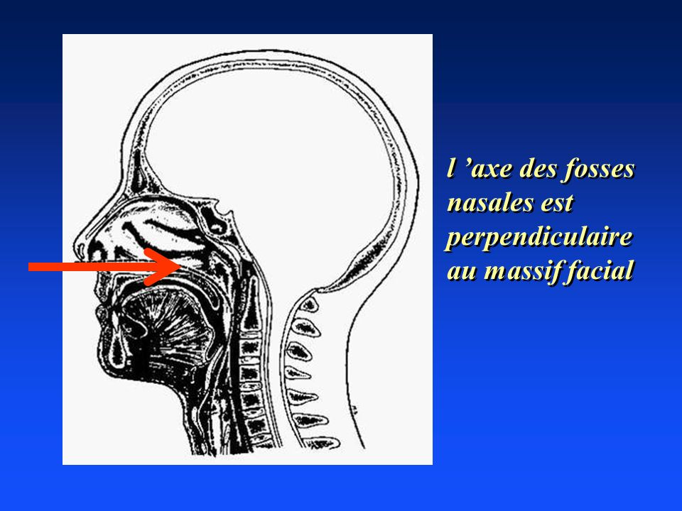 l axe des fosses nasales est perpendiculaire au massif facial