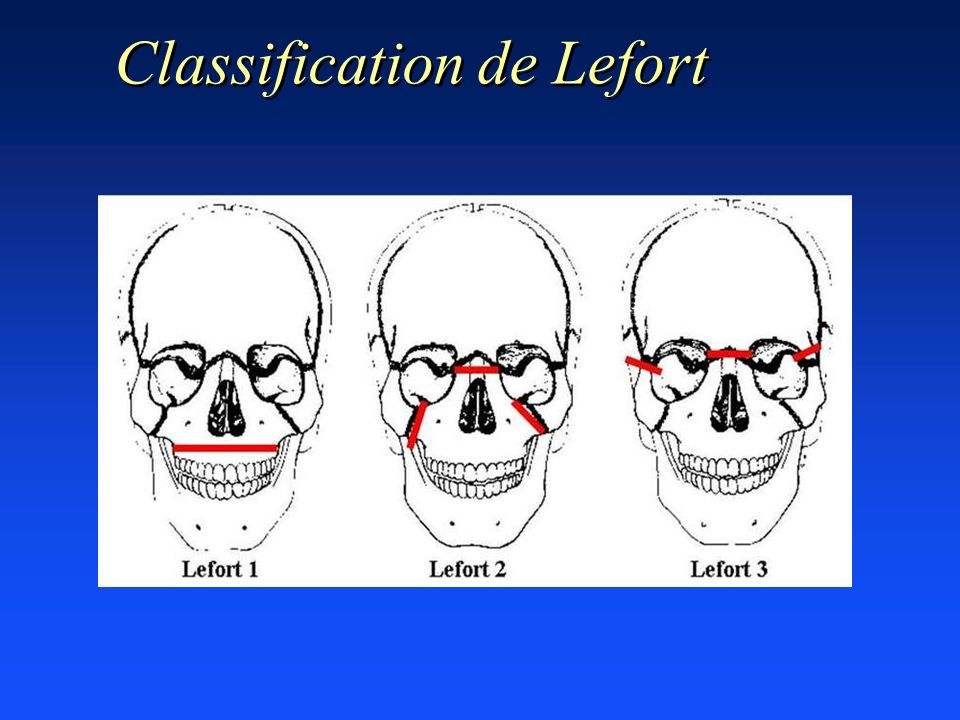 Classification de Lefort