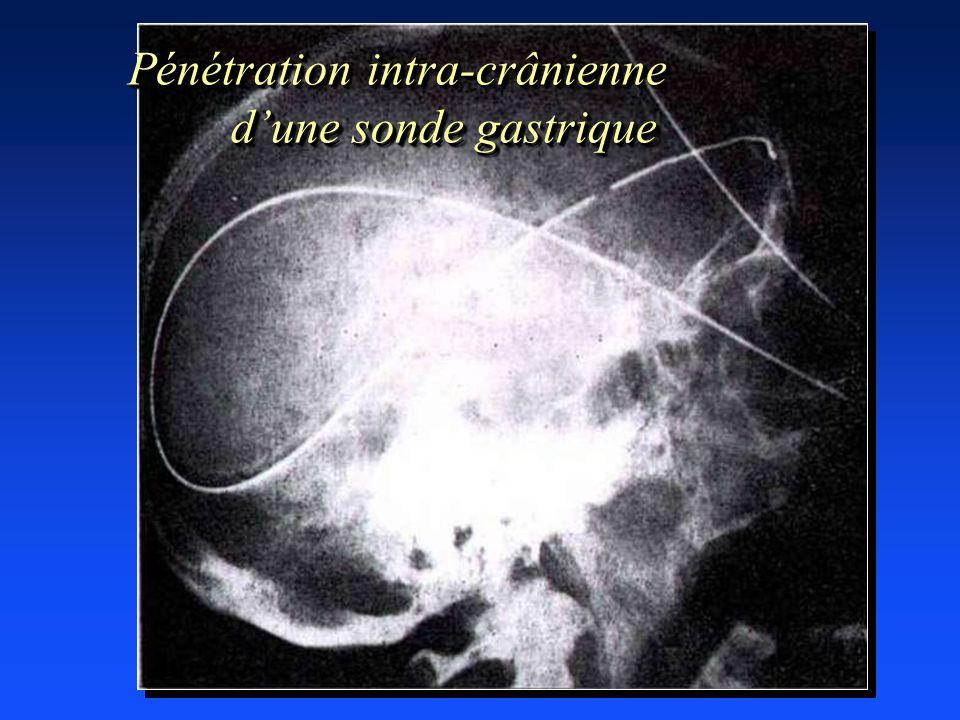 Pénétration intra-crânienne dune sonde gastrique